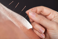 acupuncture wantage